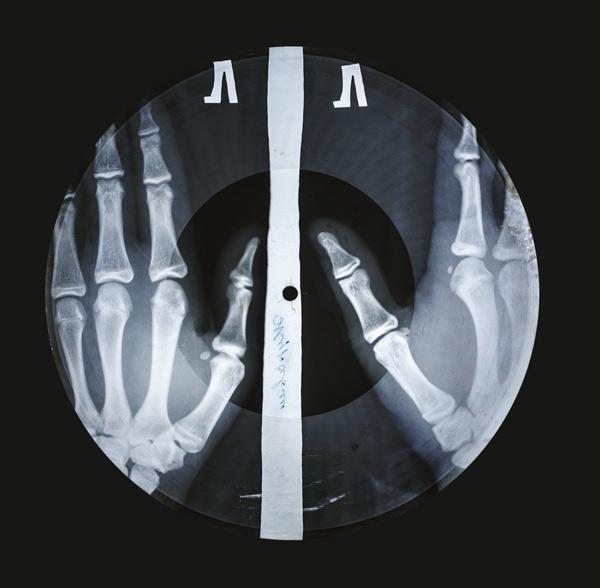 X-Rayweb